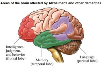 alzheimersbrain